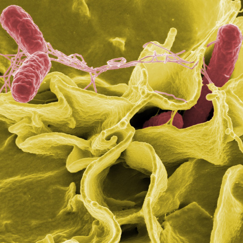 NIH Flickr_Salmonella bacteria