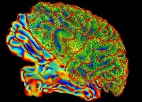 Mulit-color image of whole brain for brain imaging research