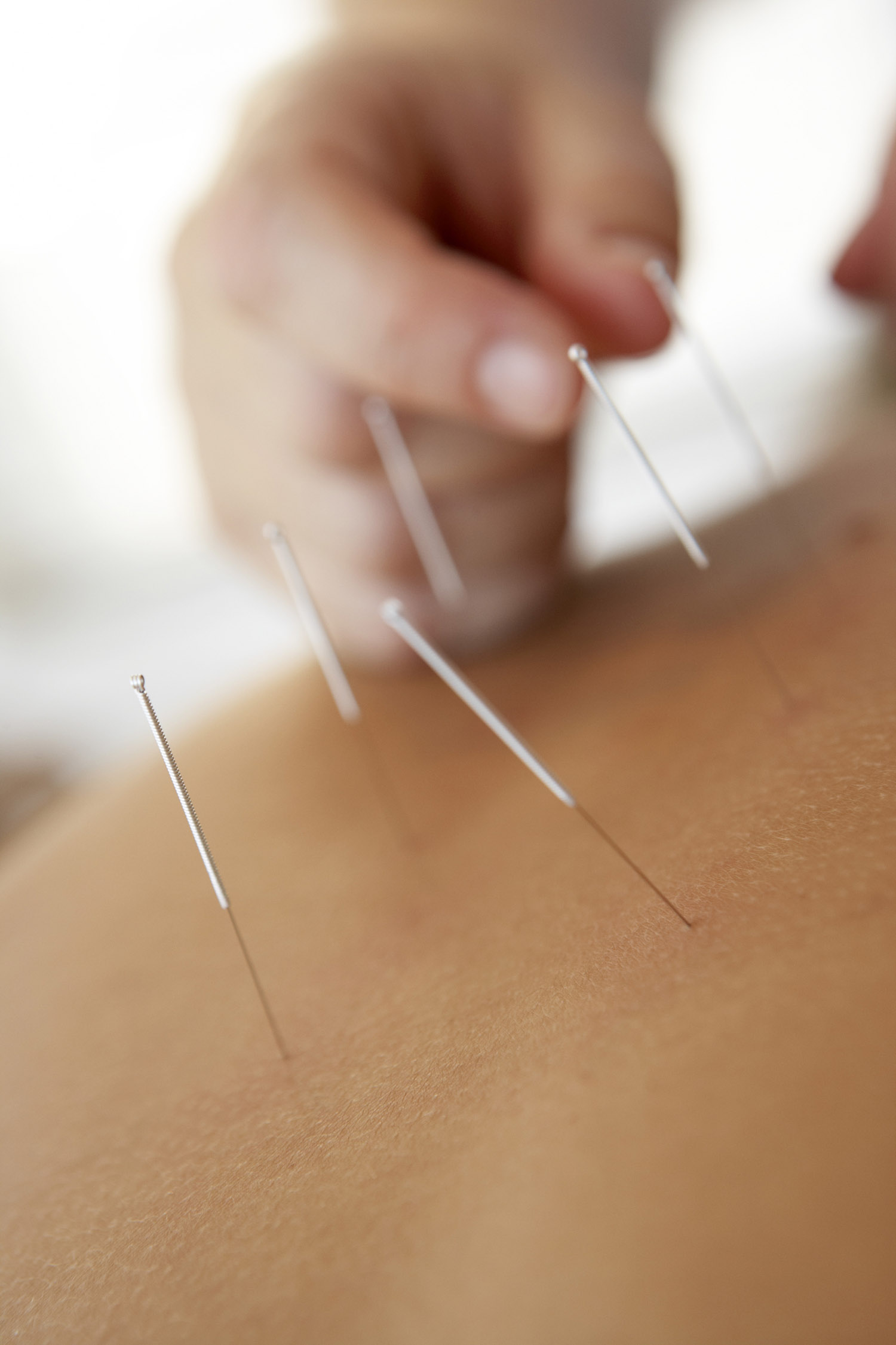 Acupuncture For Thyroid