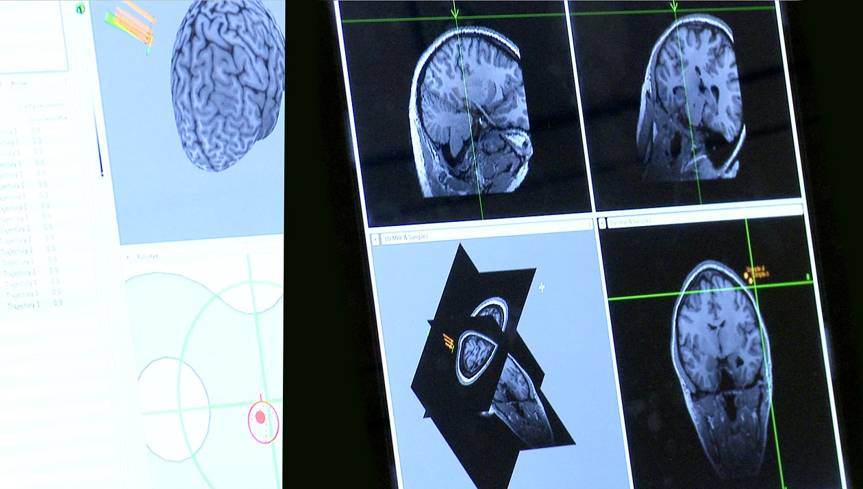 Photo of brain scan images.