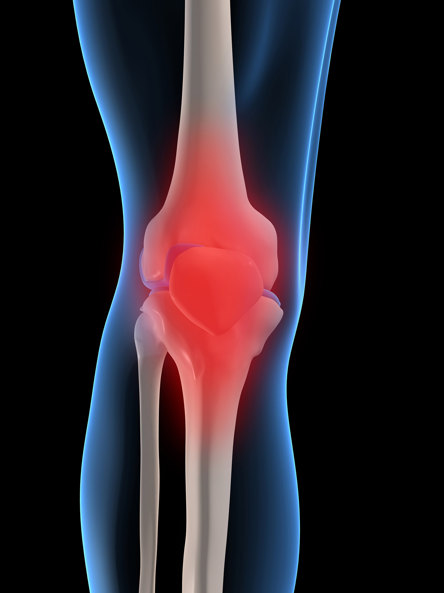 Osteoarthritis Medical Definition