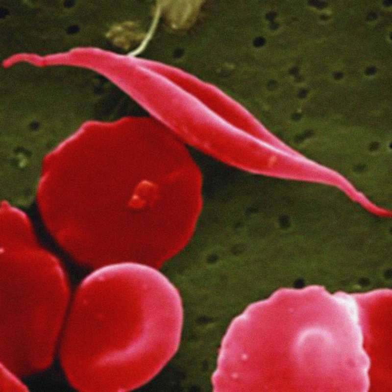 sickle cell_nih_flickr.jpg