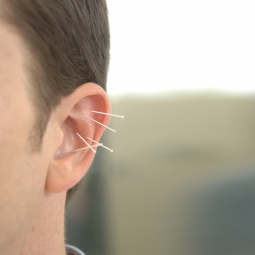 Man with acupuncture needles in his ear
