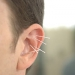Acupuncture applied to a man's ear.