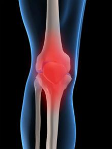 Illustratoin of a leg at the knee, the joining of the bones is red to imply pain.