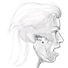 The Temporomandibular Joint, Open