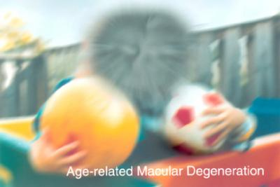 Macular Degeneration courtesy of the National Eye Institute, National Institutes of Health