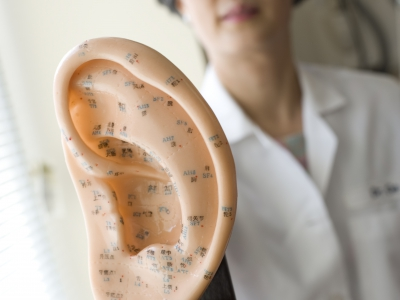 Doctor displays a model of acupuncture points on the ear.