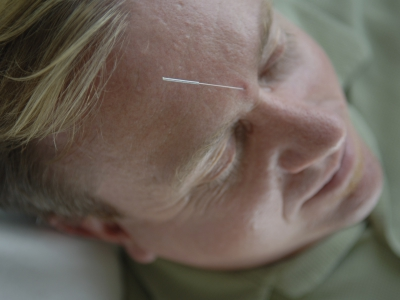 An acupuncture needle in a man's forehead.