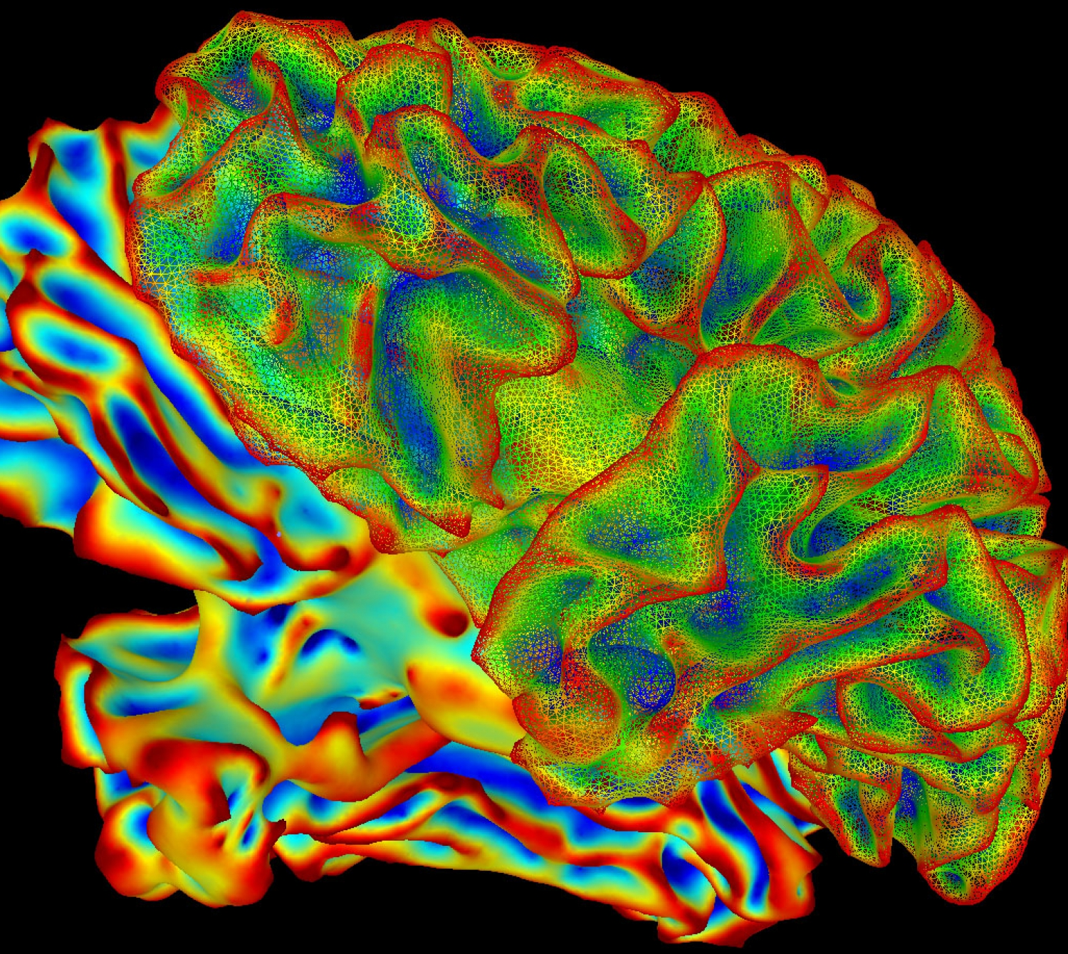 An image of the brain.