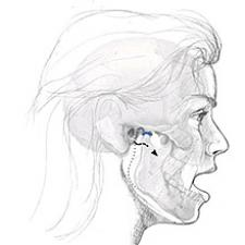 The Temporomandibular Joint, Open
