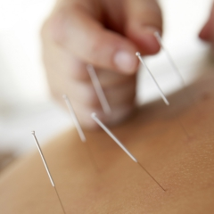 Practitioner applies acupuncture needles to a patient's shoulder. © BananaStock