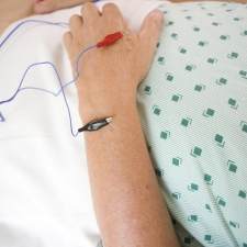 Electroacupuncture needles in arm. © Matthew Lester