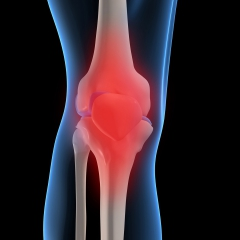 Illustratoin of a leg at the knee, the joining of the bones is red to imply pain. © Ingram Publishing/Thinkstock