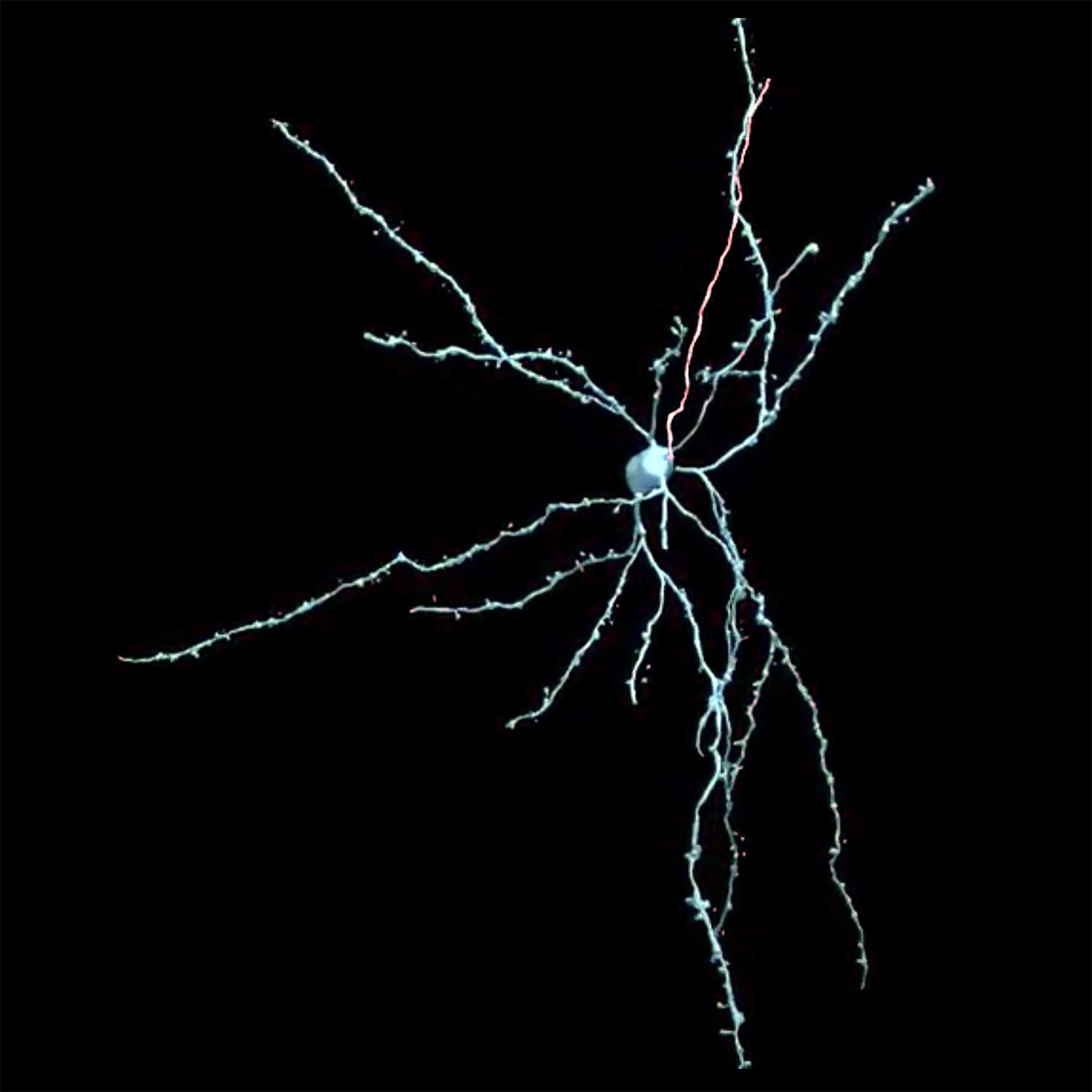 3D reconstruction of central amygdala neuron